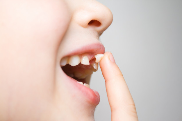 Dental Emergencies - Lake Worth Pediatric Dentistry